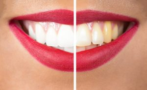 Want whiter teeth without messy at-home treatments? ZOOM! teeth whitening in Littleton from Blue Sage Dental is the option you need.